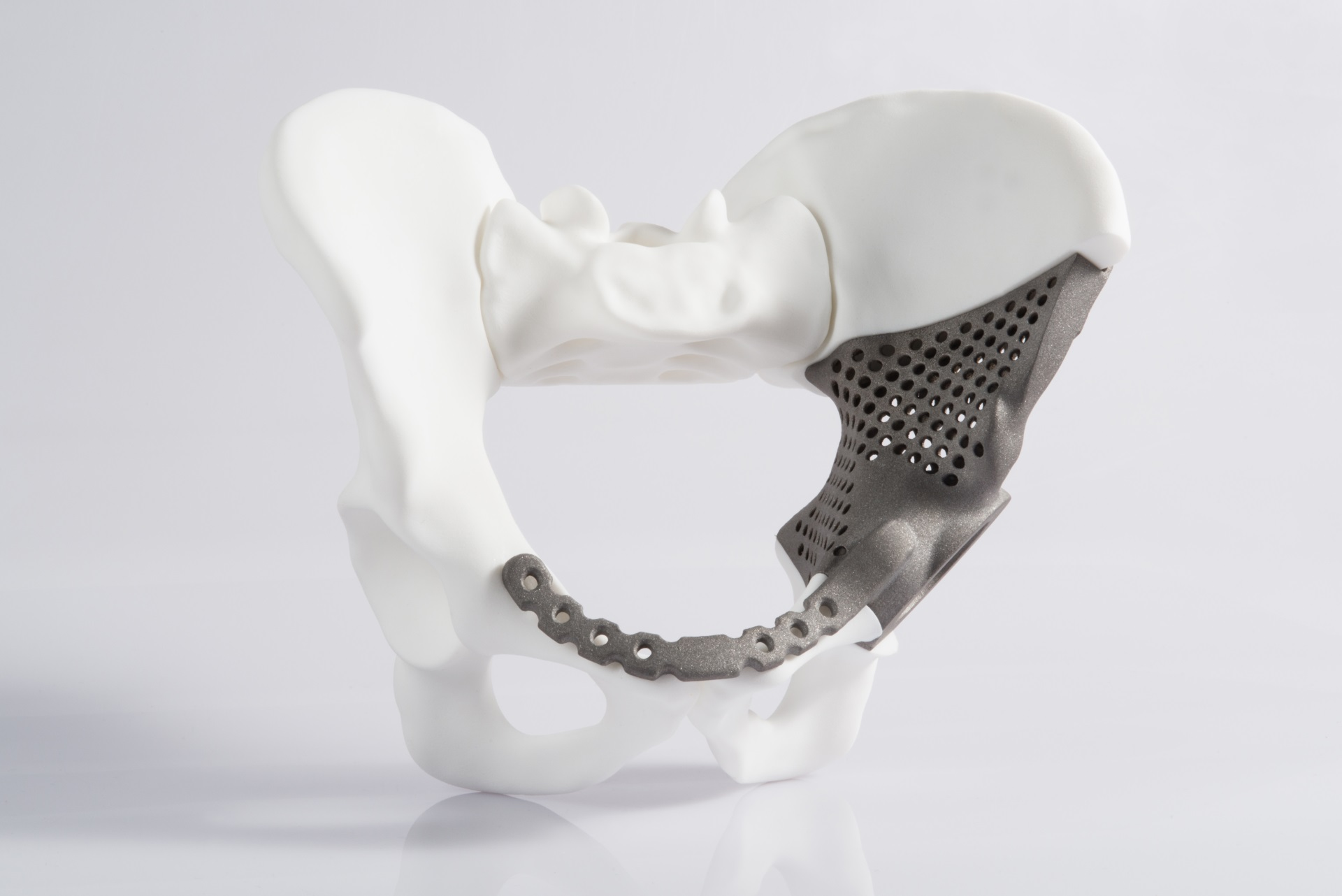 Medical: Help is fast at hand: Alphaform produces hip implant by using Additive Manufacturing